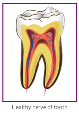 Root Canal Treatment 1