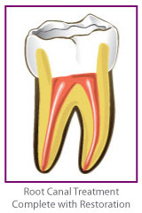 Root Canal Treatment 4
