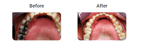 How to Look for a Good Teeth Bonding Melbourne Clinic