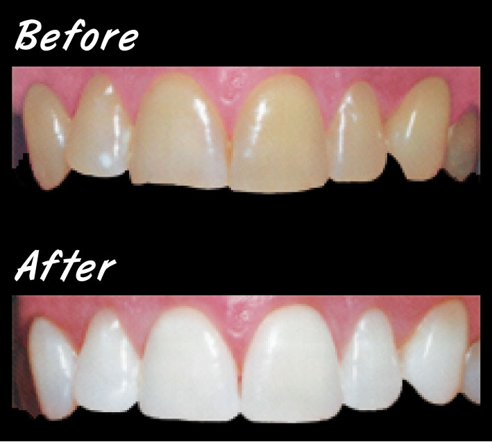 Whitening1_before_after_op