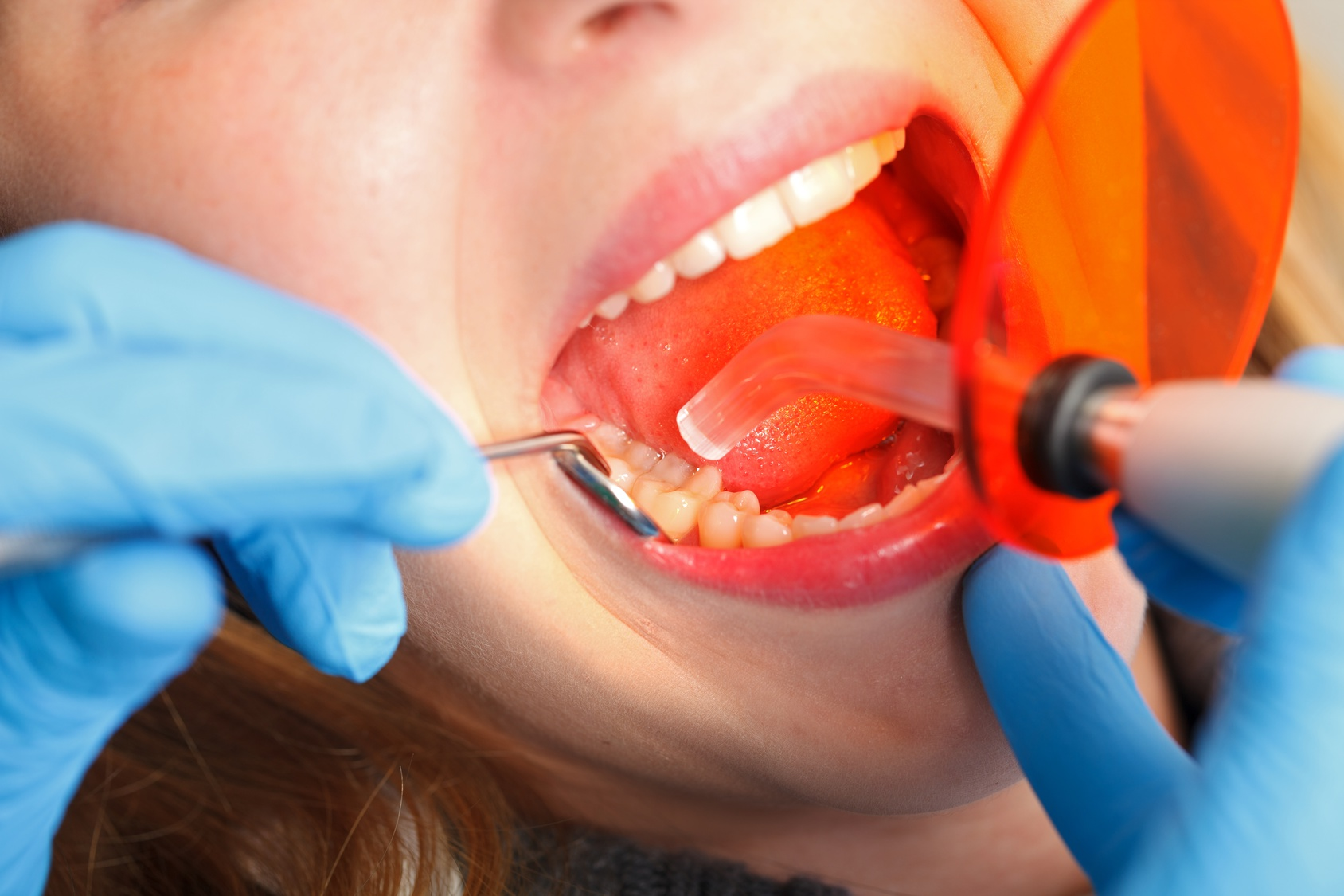 Common Dental Emergency