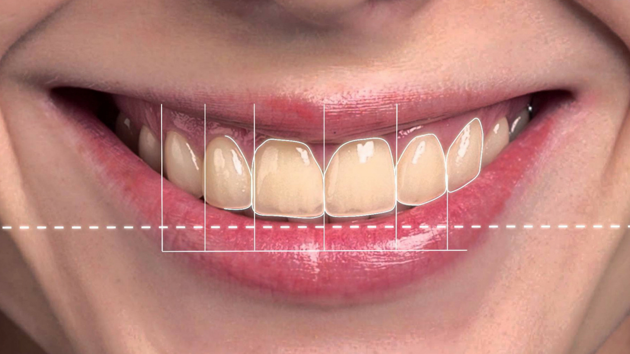 Digital Smile Makeover