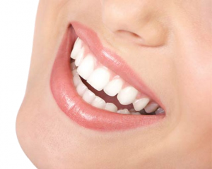 Important Facts to Know about Teeth Whitening