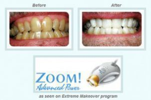 Zoom Teeth Whitening Before and After