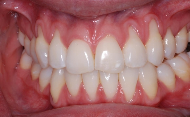 Risk of Gum Disease Varies