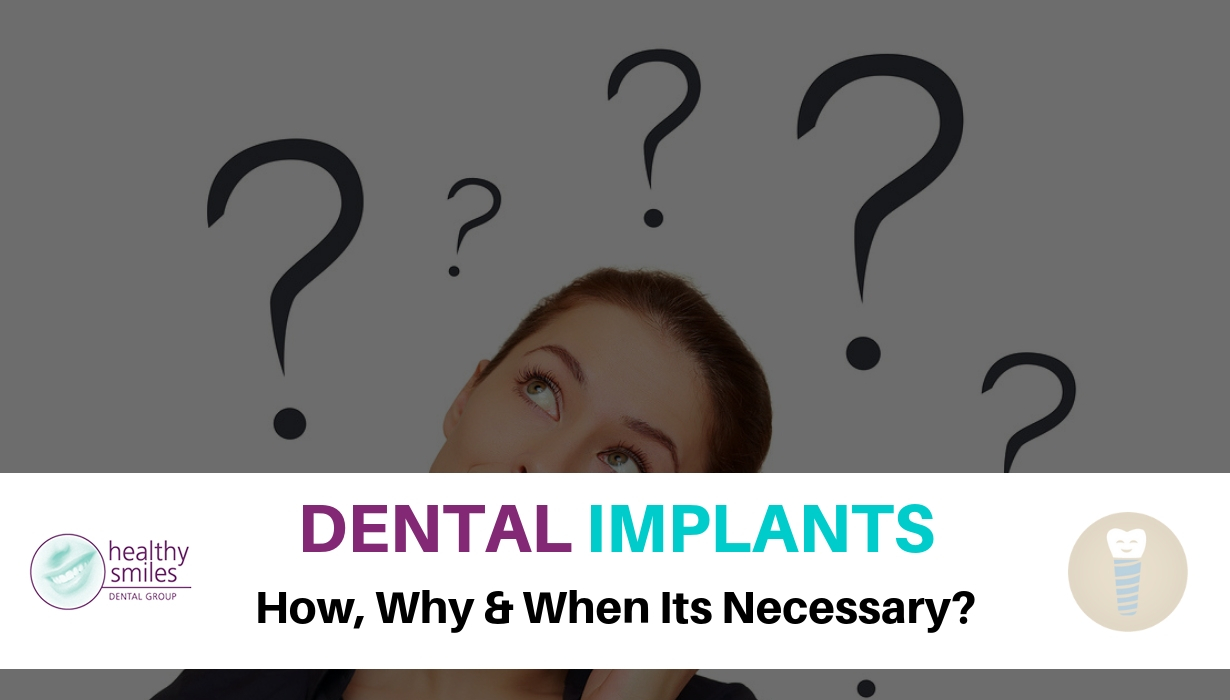 When Dental Implants Necessary