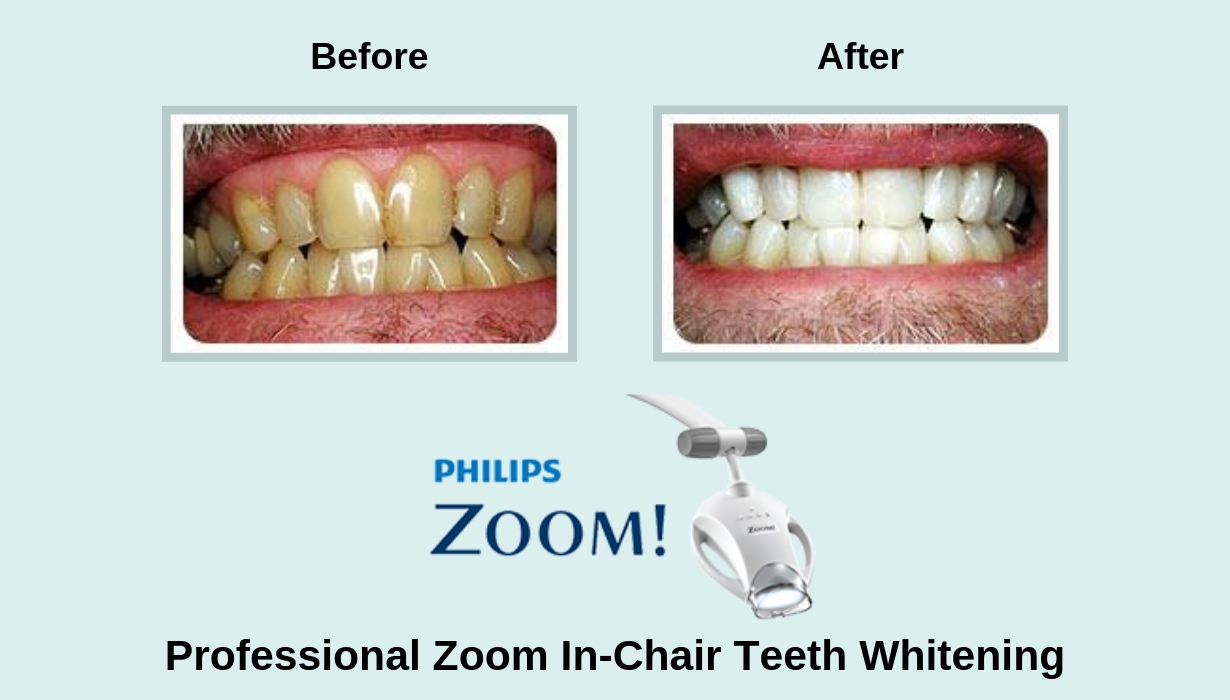 Zoom in-chair teeth whitening