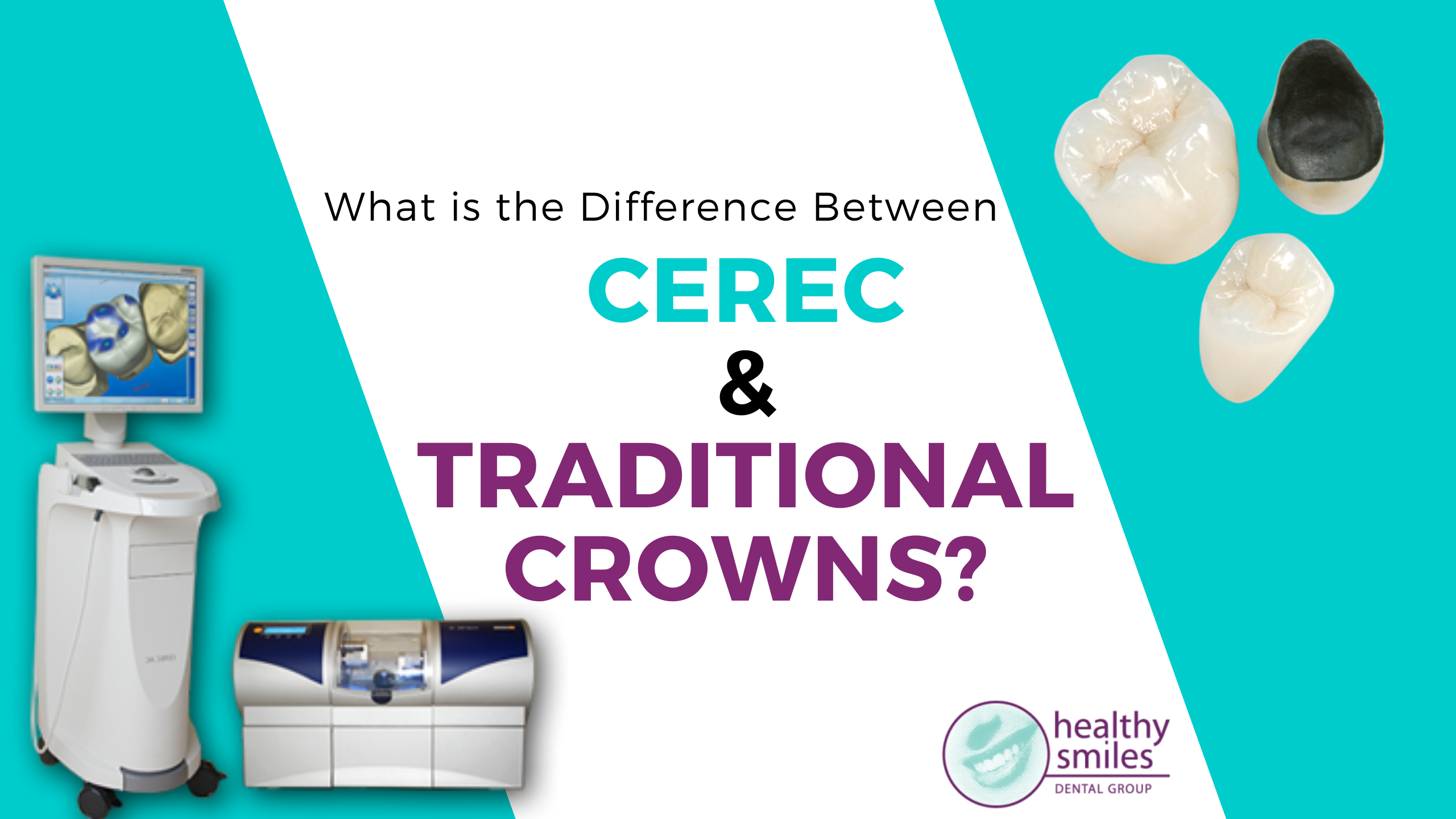 CEREC and Traditional Dental Crowns