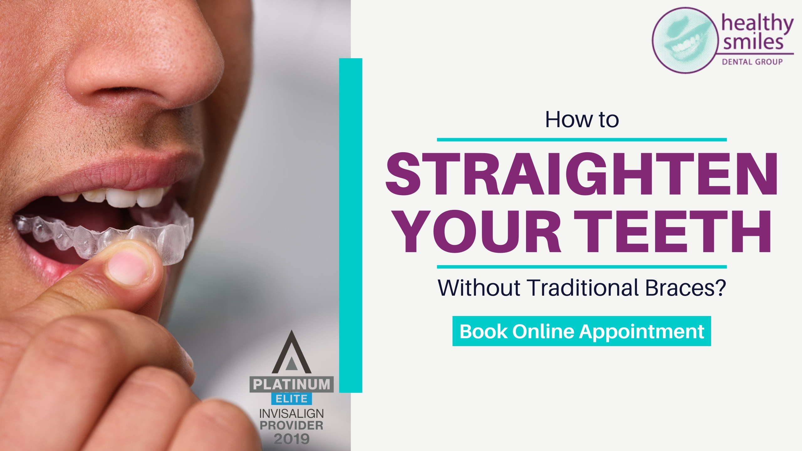 The Ways to Straighten Your Teeth Without Traditional Braces