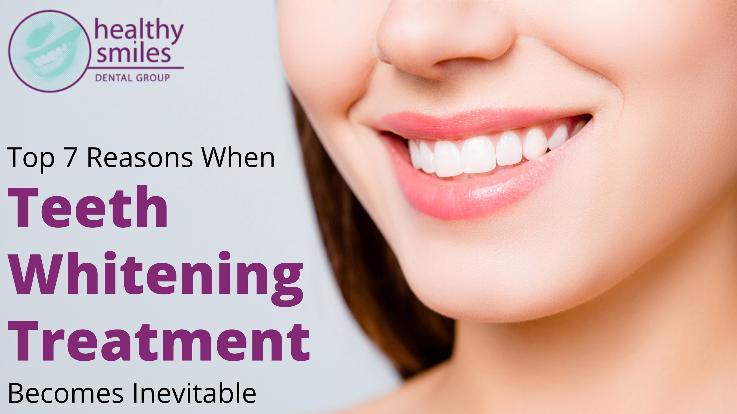 Top 7 Reasons Proving Teeth Whitening Is Inevitable