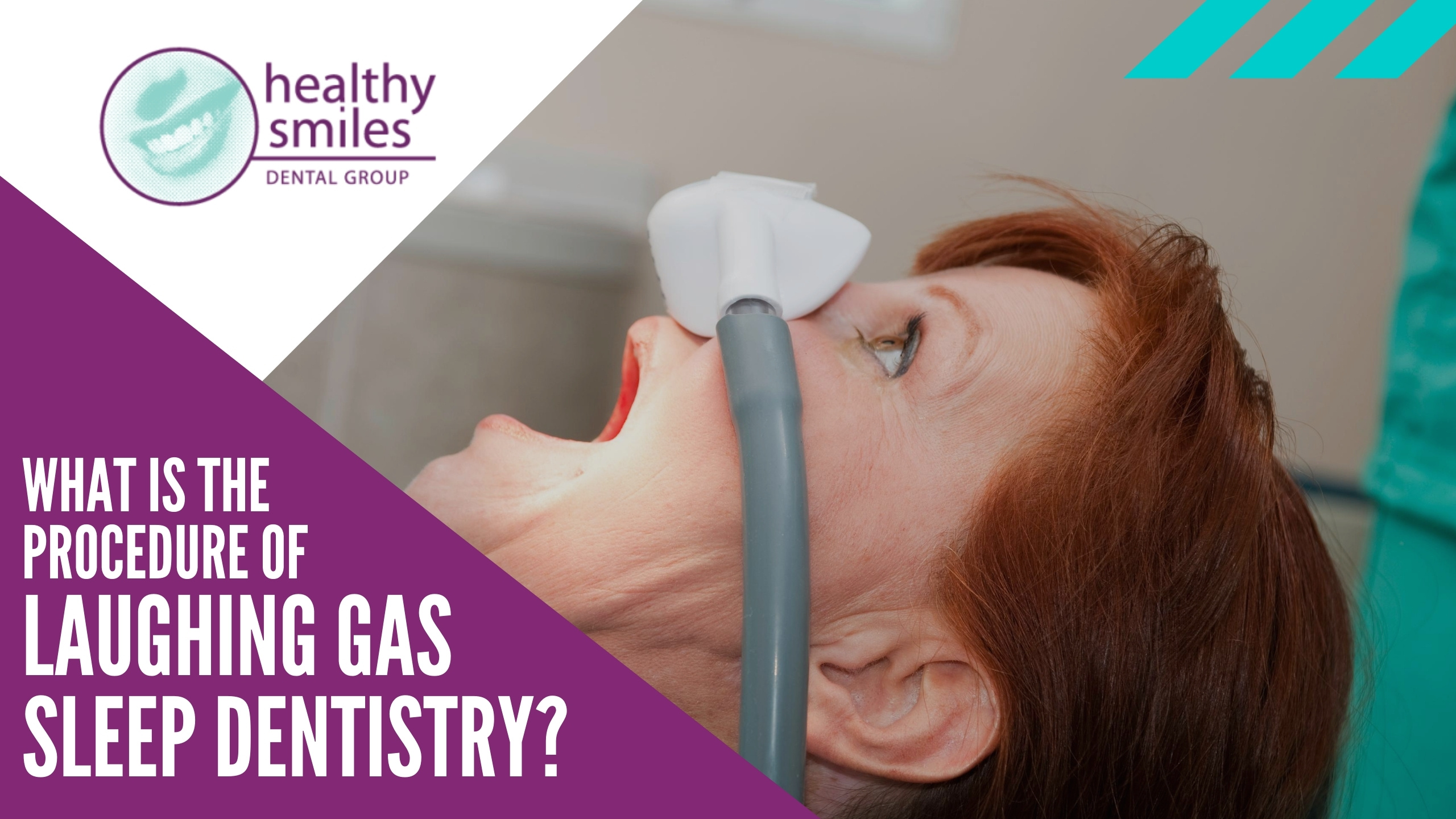 What is the Process of Laughing Gas Sleep Dentistry