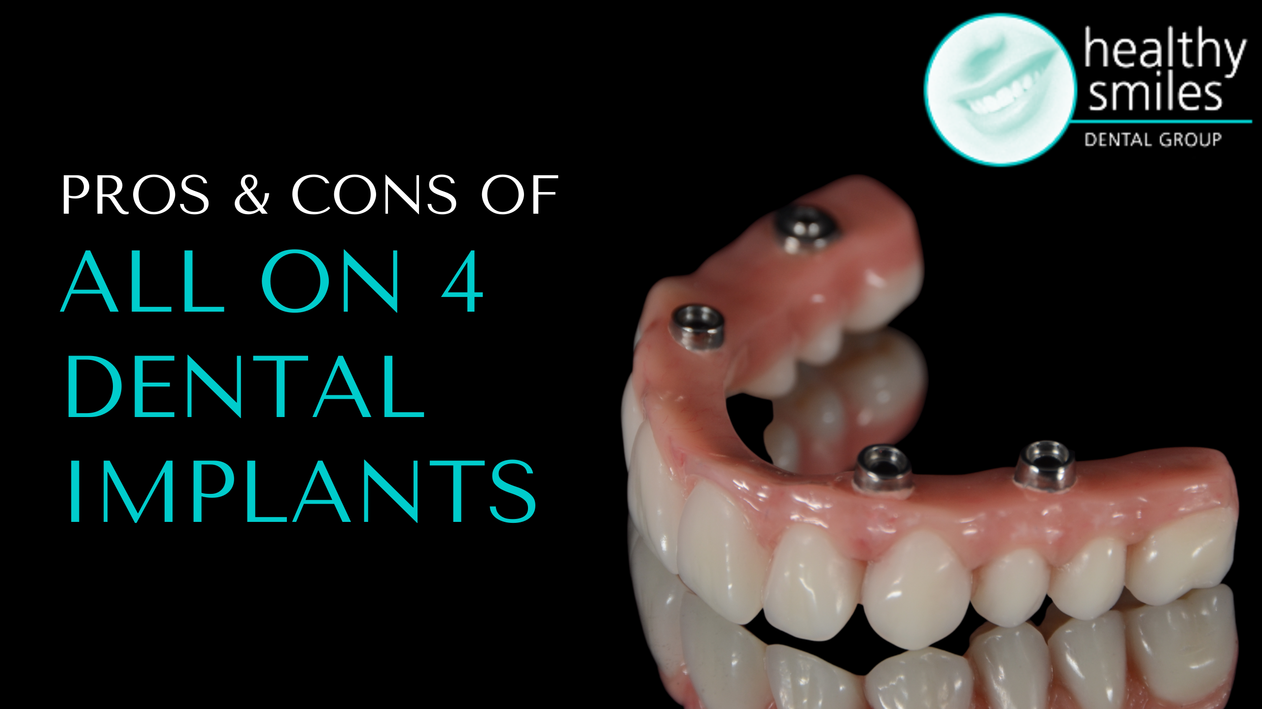 The Pros and Cons of All-on-4 Dental Implants