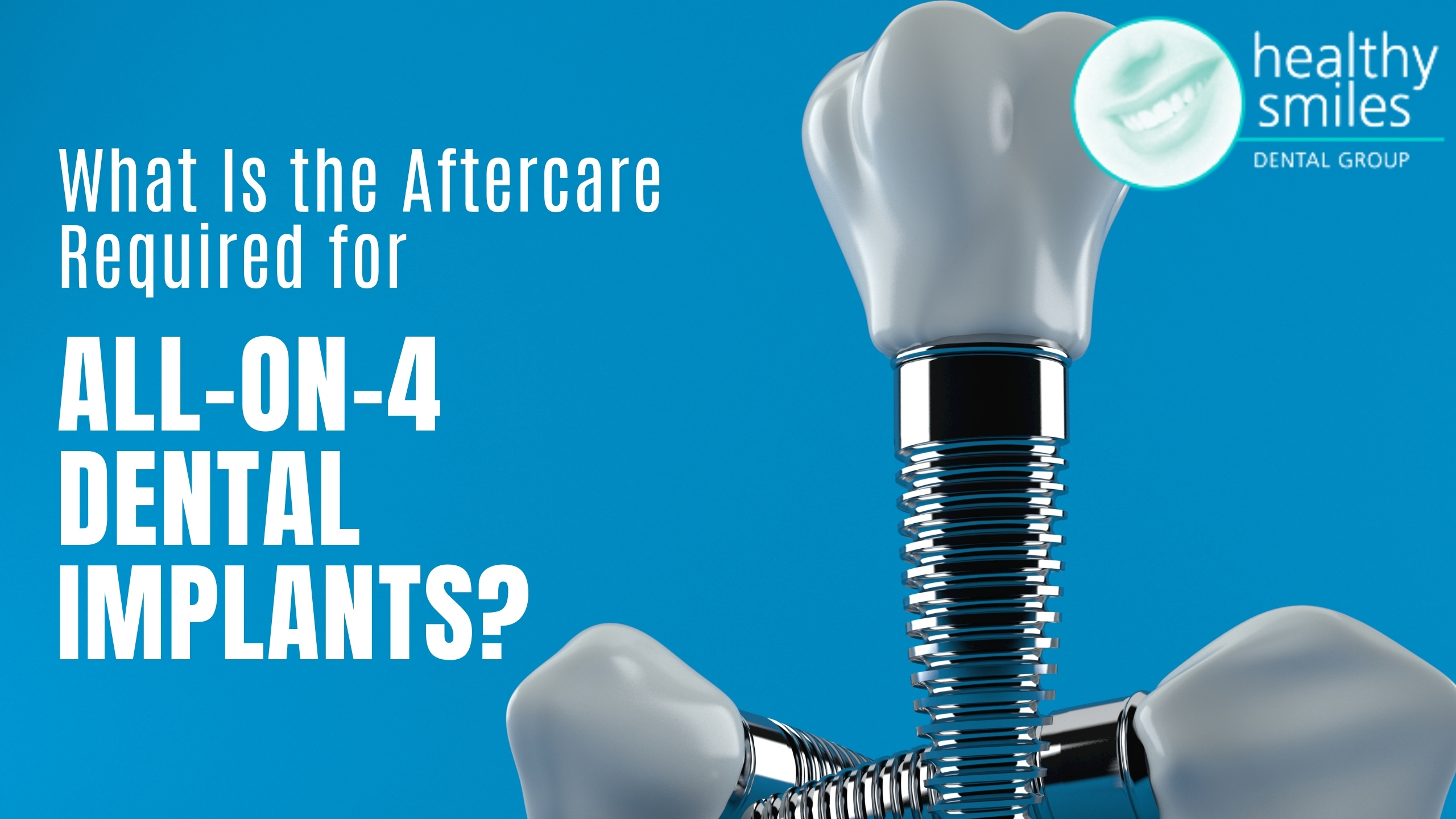 What is the Aftercare Required for All-on-4 Dental Implants?
