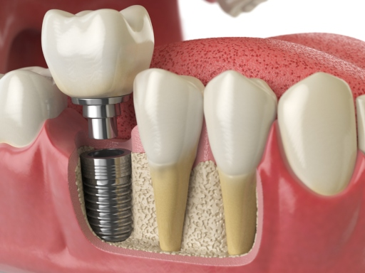 How Long Does the Dental Implant Process Take