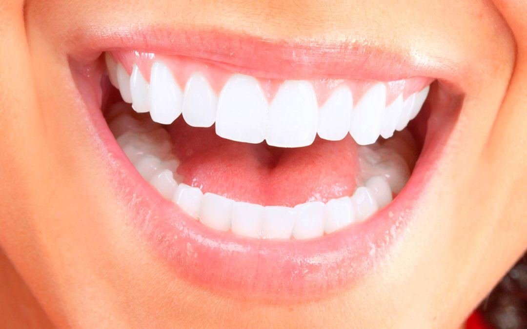 Blackburn Dentist–12 Tips For Maintaining Your Dental Health During The Holidays
