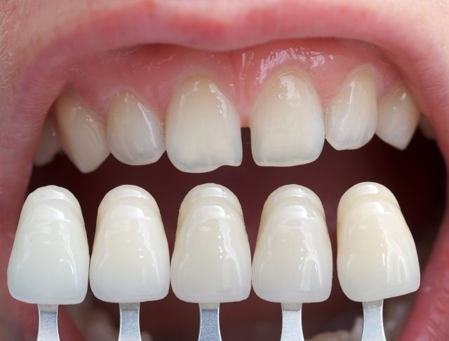 Where can I get quality dental veneers in Melbourne?