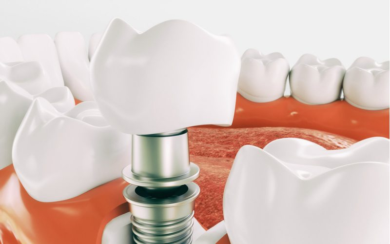 Are Dental Implant Affordable Quality vs Low Cost