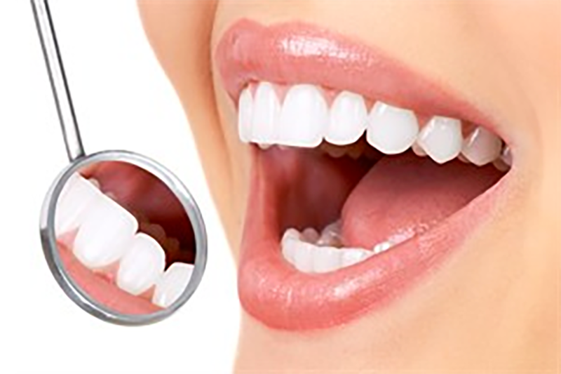 How much Porcelain Veneers cost in Melbourne?