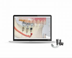 Digital Guided Implant Surgery