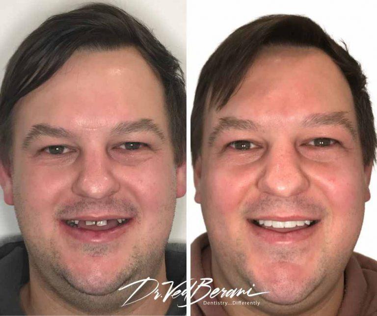Porcelain Veneers and Teeth Whitening & Sleep Dentistry-sleep dentist melbourne