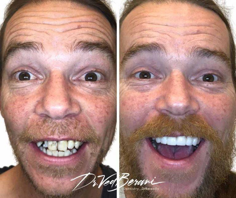 Multiple Dental Implants and Porcelain Bridge-Best Cosmetic Dentist Melbourne