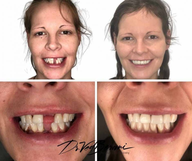 Multiple Dental Implants and Porcelain Bridge-Melbourne Cosmetic Dental Experts