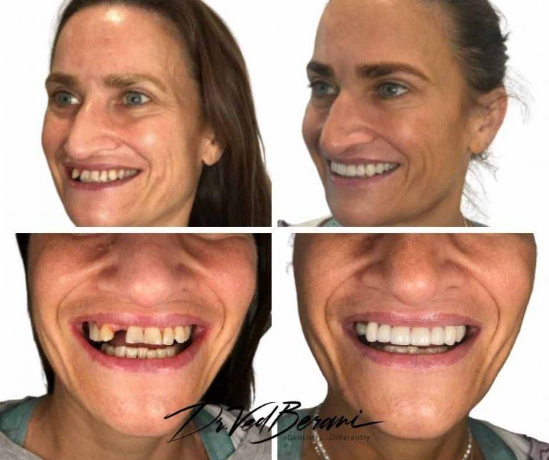 Porcelain Crowns, Bridge and Dental Implants & Sleep Dentistry-Melbourne