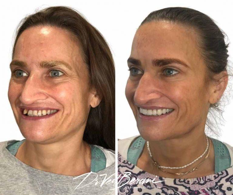 Porcelain Crowns, Bridge and Dental Implants & Sleep Dentistry-Melbourne Cosmetic Dentist