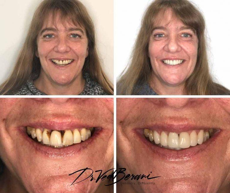 Porcelain Crowns-Veneer-Dental Implant and Sleep Dentistry-Implant and sleep dentist Melbourne
