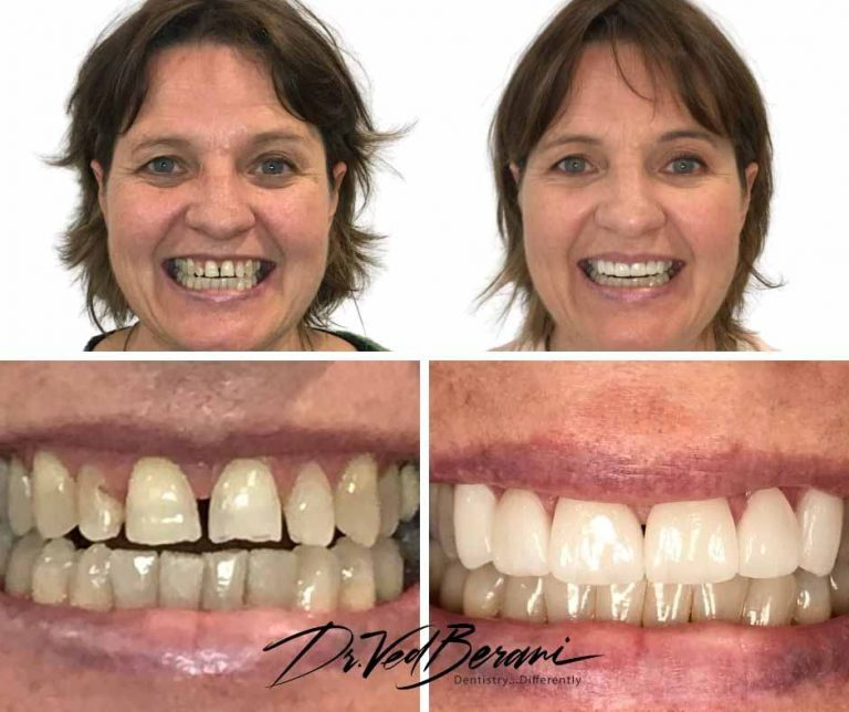 Porcelain Veneers and Crowns-Best Cosmetic Dentist Melbourne