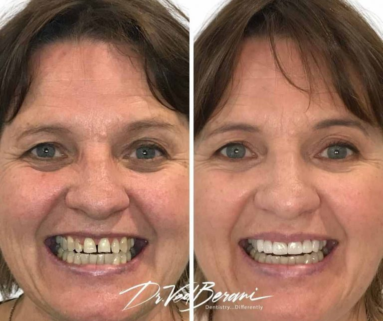 Porcelain Veneers and Crowns-Smile Makeover Melbourne