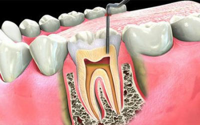 Root Canal Treatment Blackburn Area