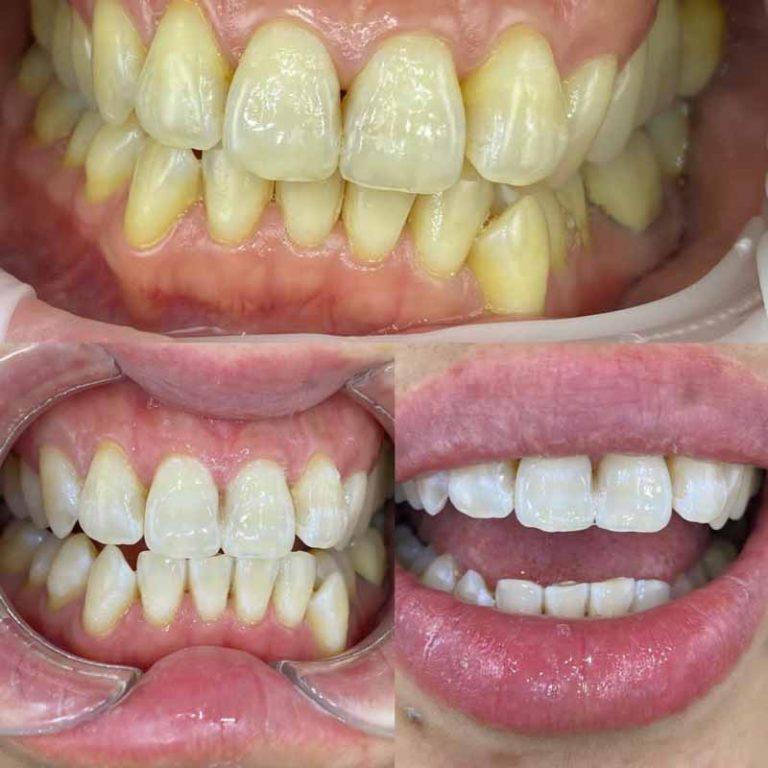Best Dentist for Teeth Whitening in Melbourne-Dentist Zoom Whitening