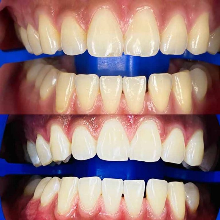 How Good is Zoom Whitening-Melbourne Dentist