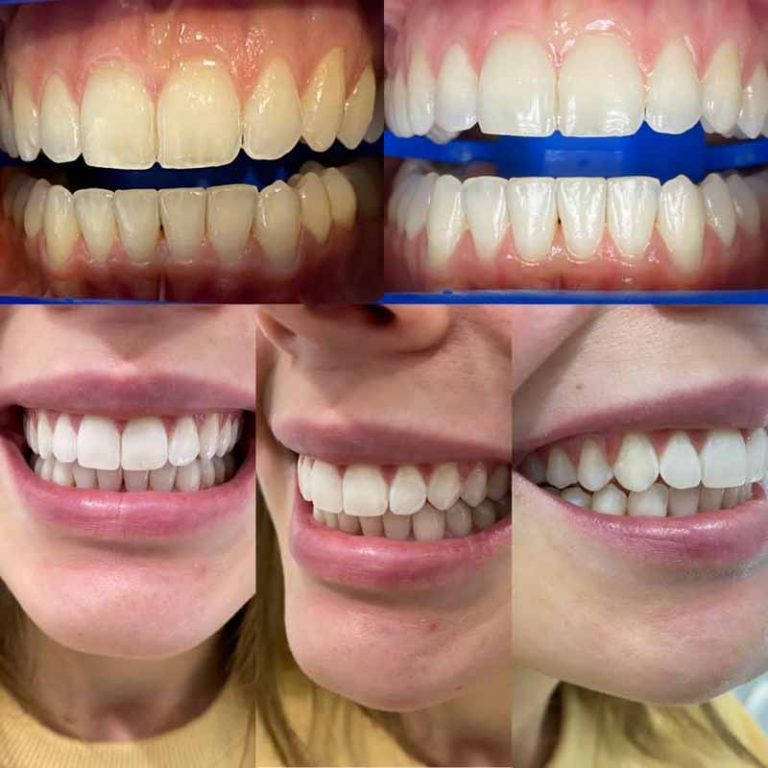 How white can be my teeth with Zoom Whitening-Blackburn dentist