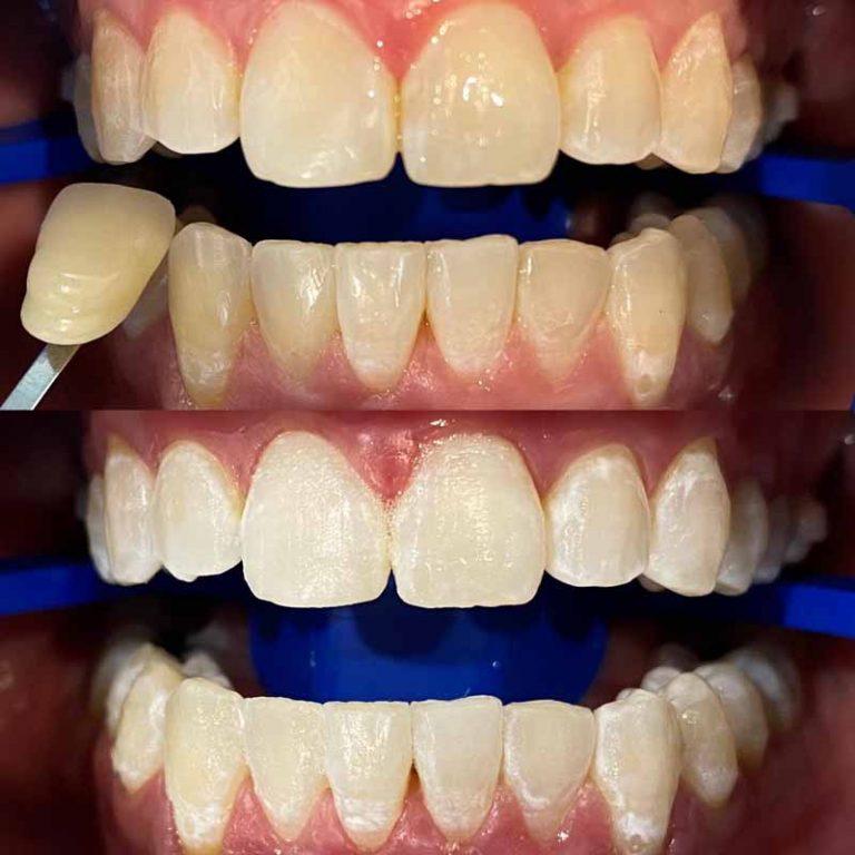 In-office teeth whitening Melbourne Dentist