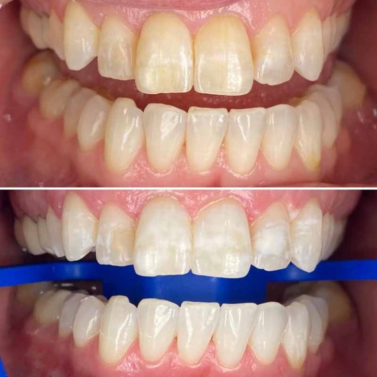 Is zoom whitening the best for whiter teeth