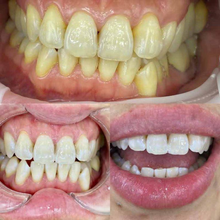 Melbourne dentist for teeth whitening