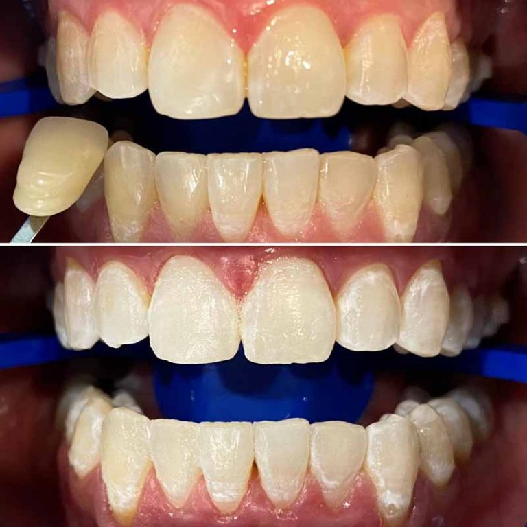 Teeth Whitening Blackburn-Healthy Smiles Dental
