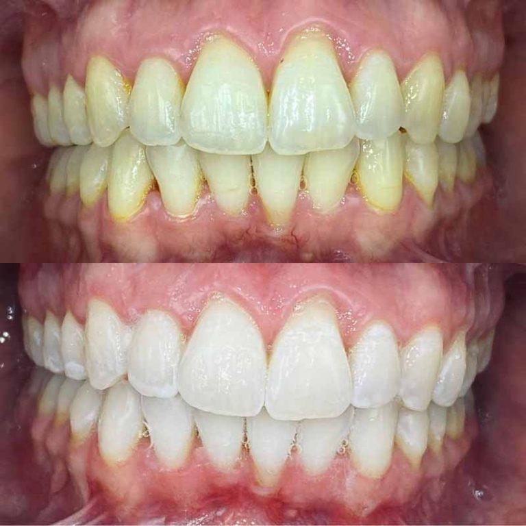 Teeth Whitening results in chair treatment Blackburn
