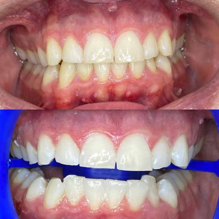 how can I whiten my teeth without breaking the bank