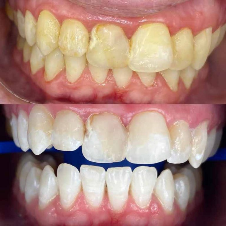 how safe is zoom teeth whitening in Melbourne