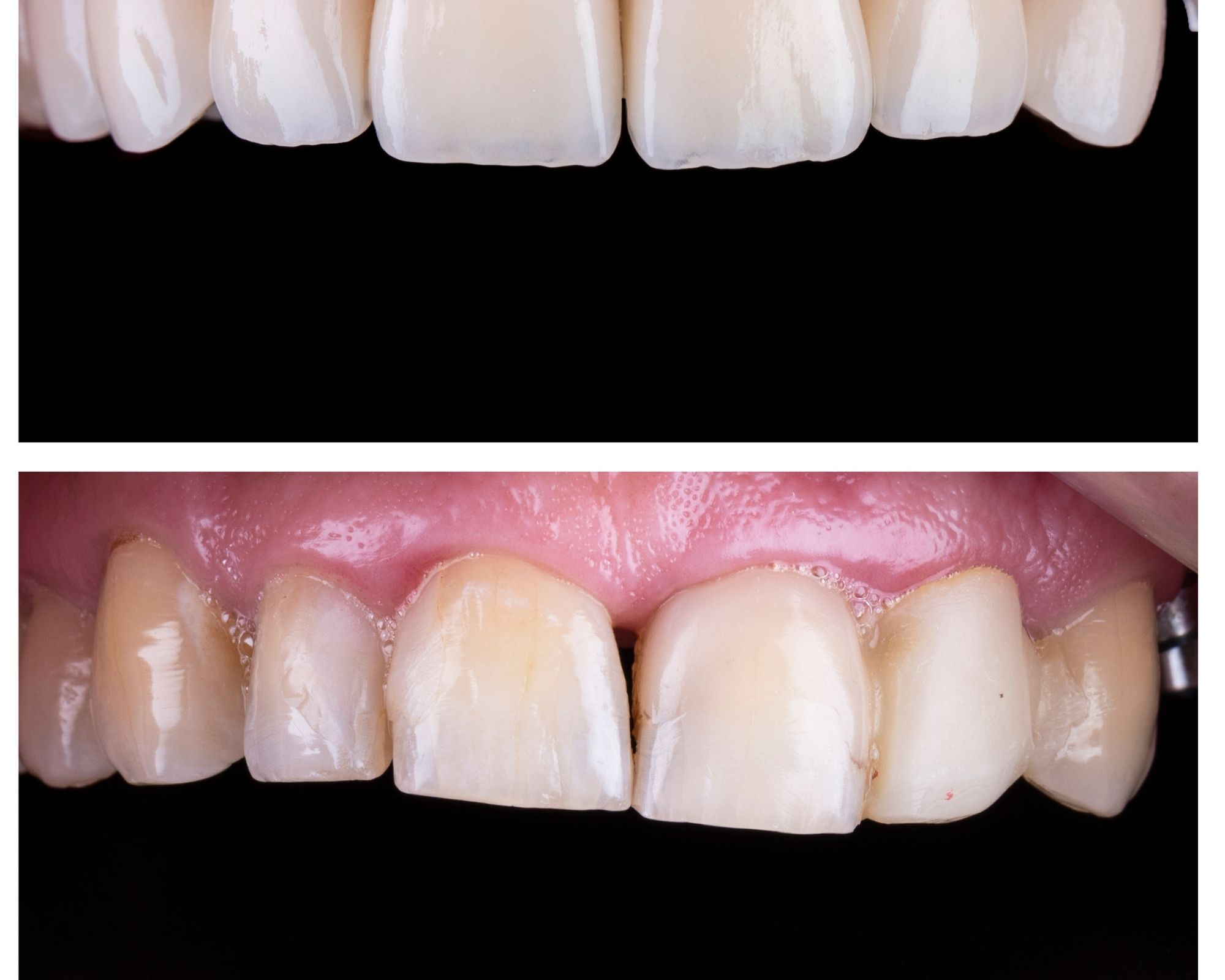 Look After Your Porcelain Veneers