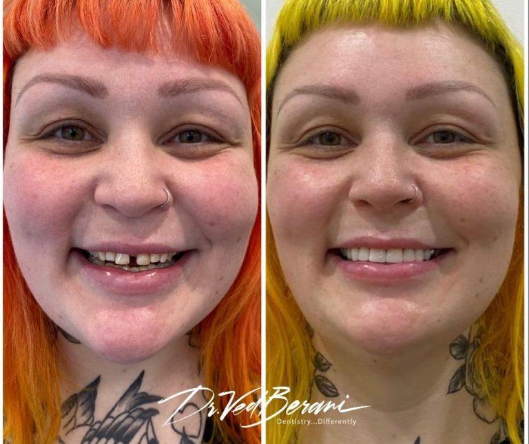 cosmetic dentistry-Blackburn-porcelain veneers-blackburn-Happy patient with veneers