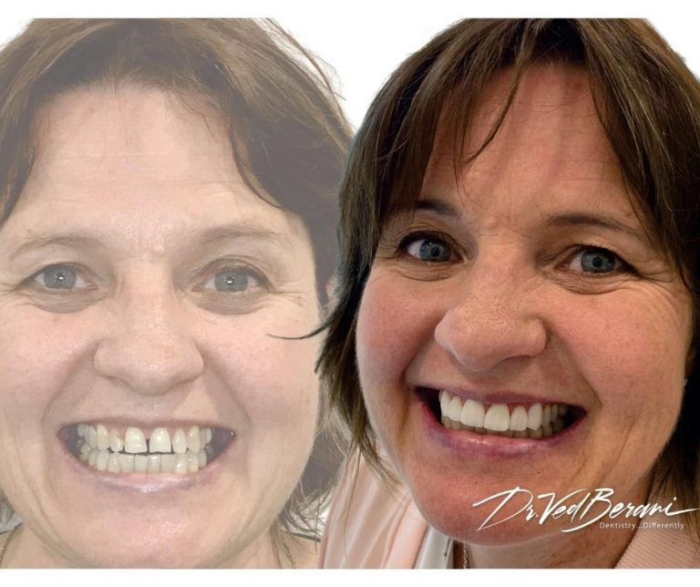 veneers blackburn-cosmetic dentist blackburn