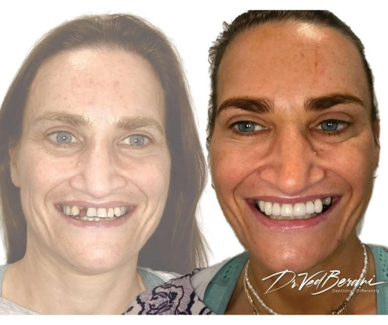 Porcelain Crowns, Bridge and Dental Implants & Sleep Dentistry-Melbourne Cosmetic Dentists Blackburn