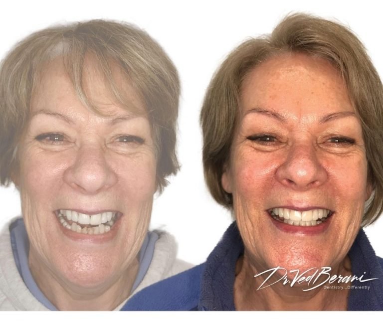Porcelain Crowns, Bridge and Dental Implants & Sleep Dentistry-Melbourne Cosmetic Dentists Blackburn-1