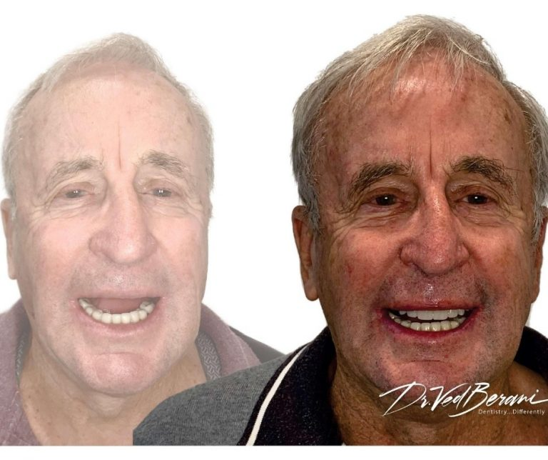 Multiple Dental Implants and Porcelain Bridge-Best Cosmetic Dentists Melbourne- implants blackburn-1