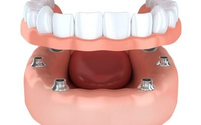 Treating Missing Teeth with All-on-4 in Blackburn