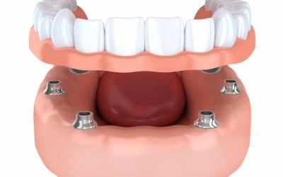 Is it Painful to Get All-on-4 Implants in Blackburn